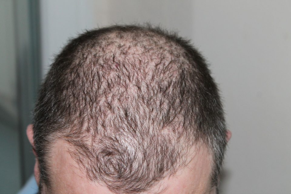 man with visible symptoms of hairloss
