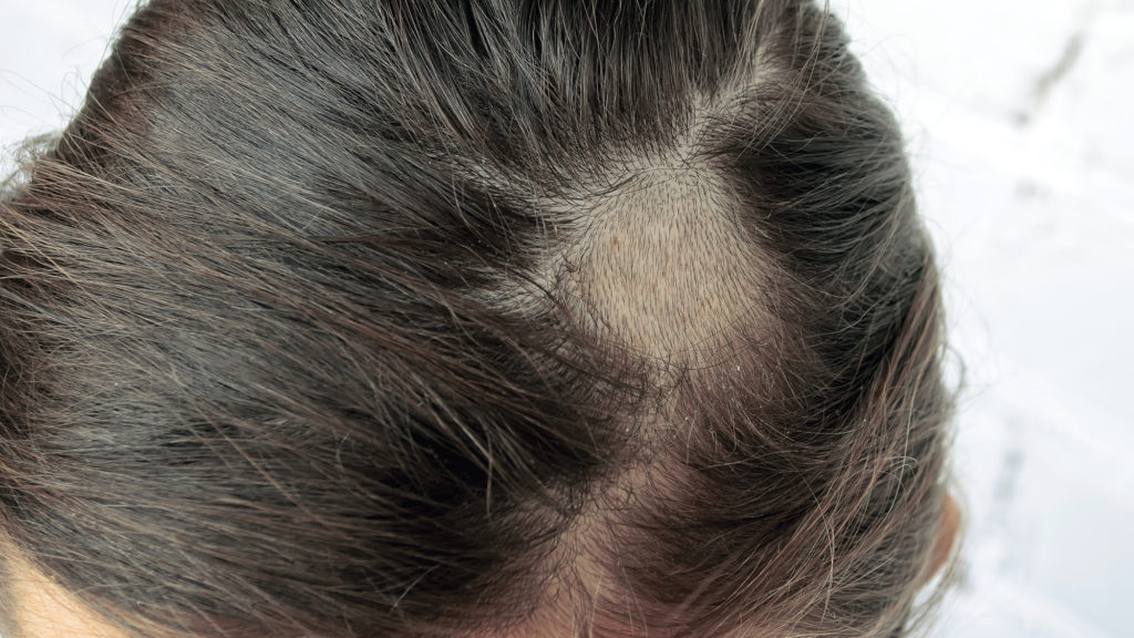 Woman with alopecia