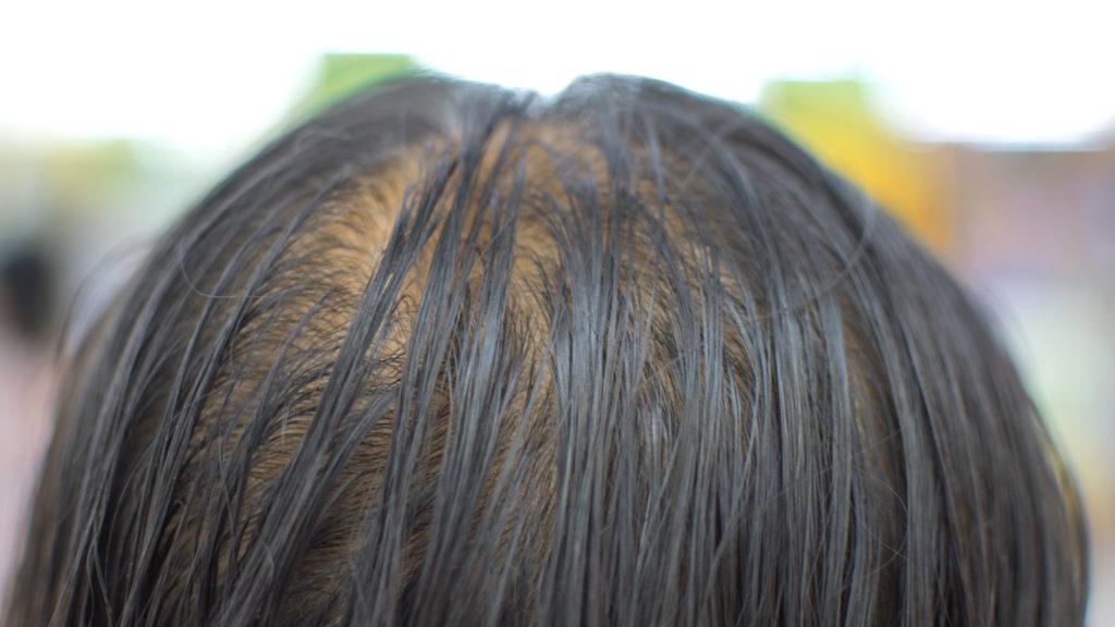 man slowly losing his hair