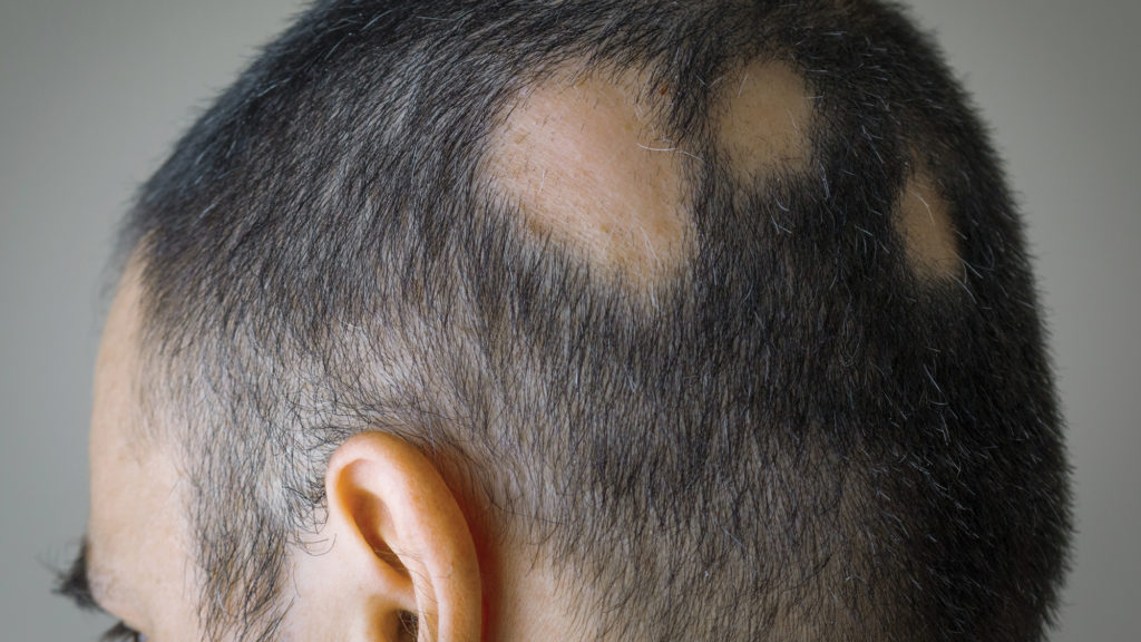 Man with alopecia areata and bald spots