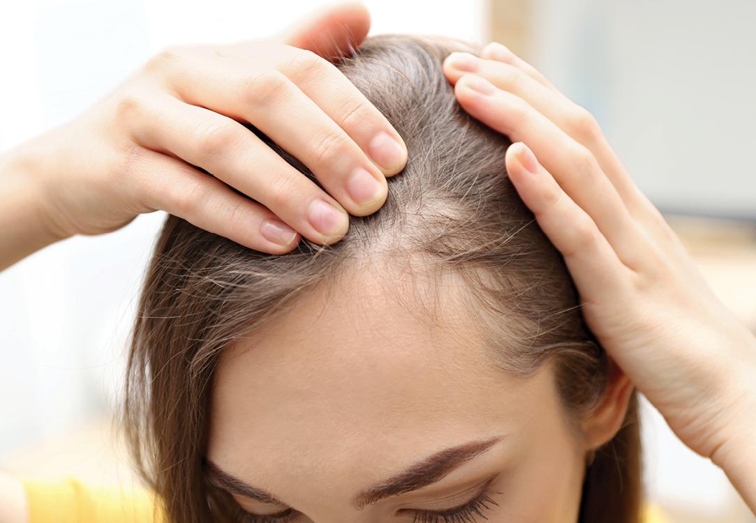 thinning hair for women