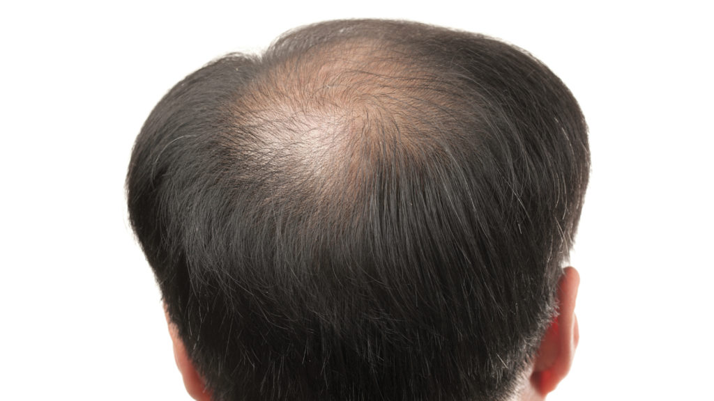Man with genetic hairloss