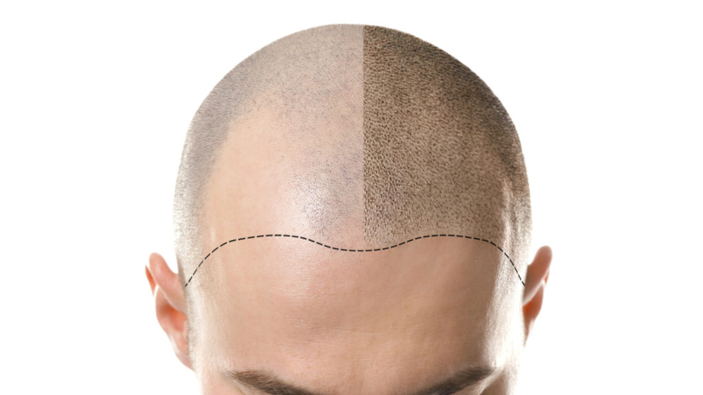 Outline of an m-shaped hairline