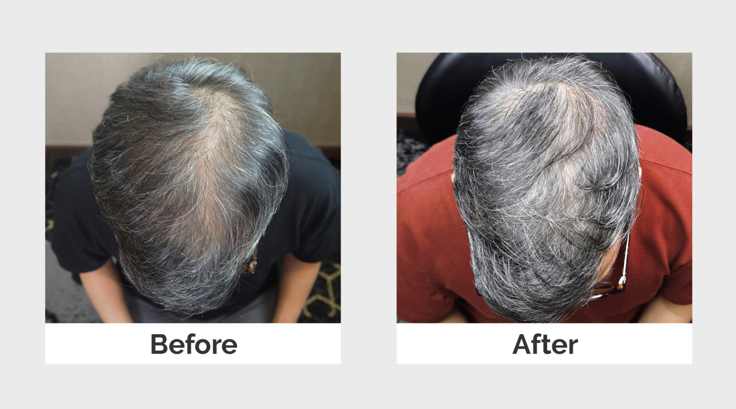 Before and After Platelet-Rich Plasma Therapy