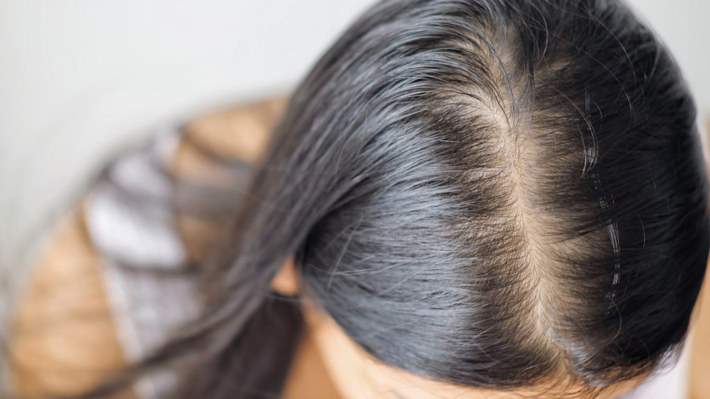 woman with postnatal hairloss