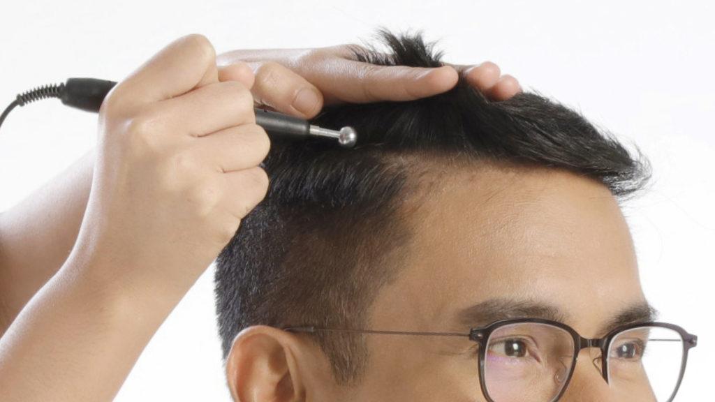 Male patient receiving scalp corrective treatment