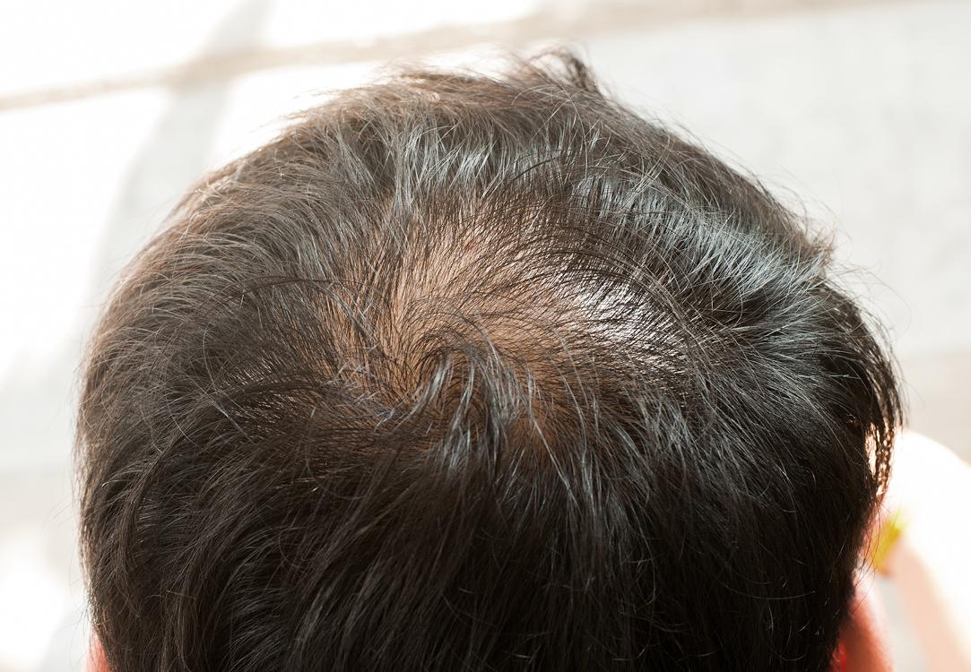 Thinning hair for men