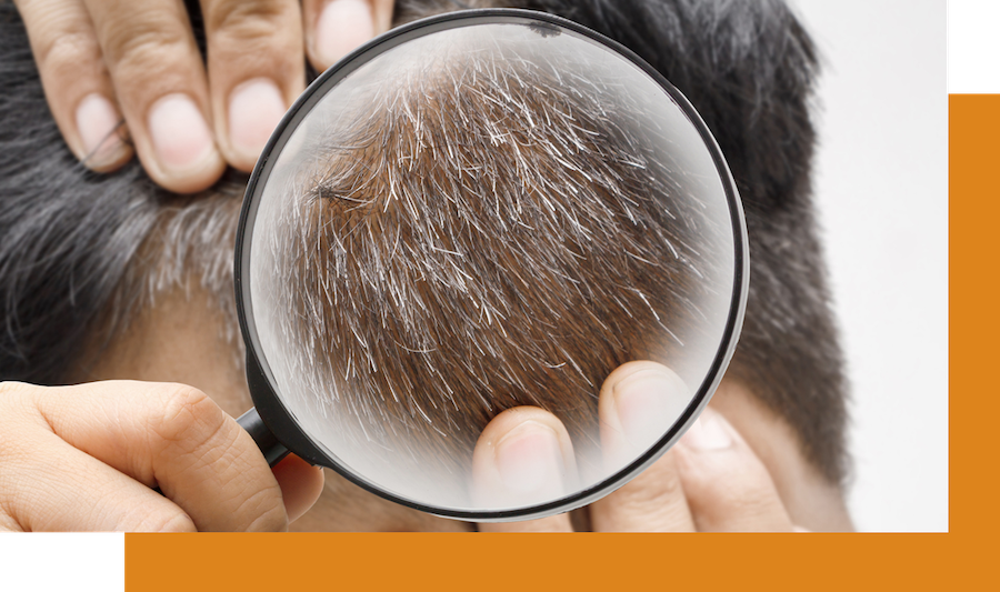 Man examining his hair for signs of aging