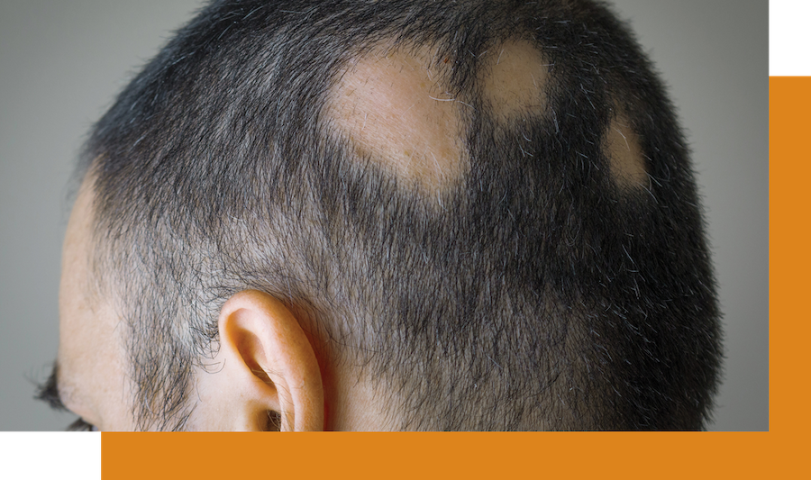 Man developing bald patches on his head