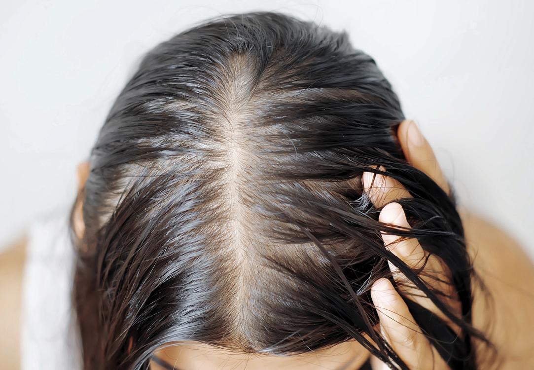 Female Pattern Hairloss