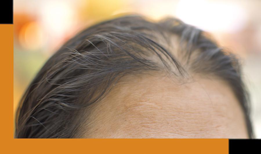 Menopausal hairloss