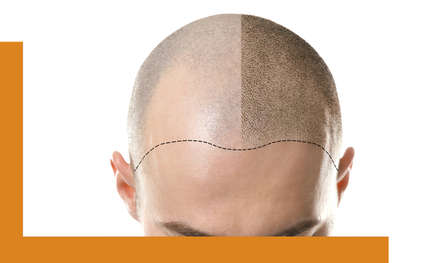 M-shaped hairloss in men