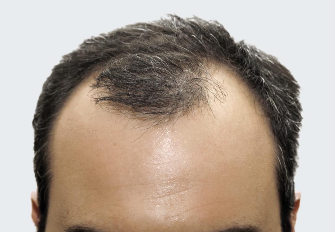 man experiencing genetic hairloss