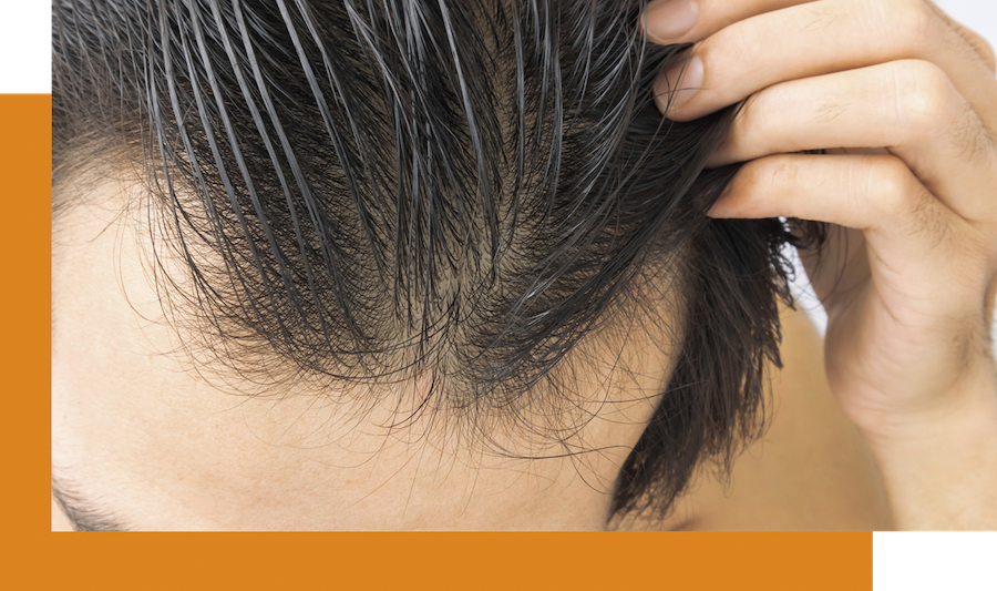 thinning hairline in men