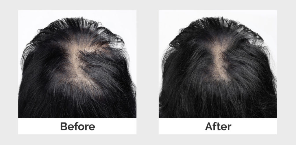 before and after treatment for menopause hair thinning