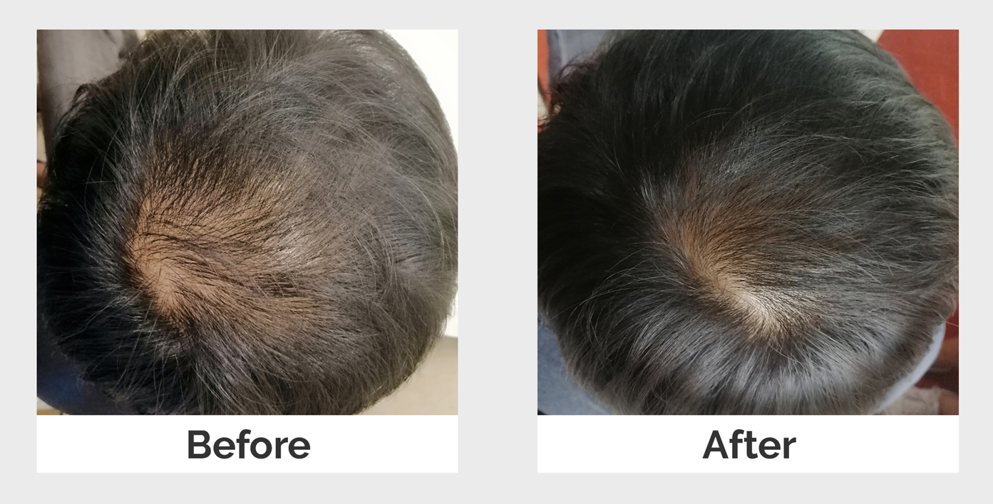 effects of successful plate-rich plasma treatment