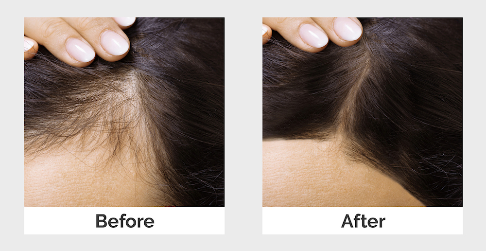 Postnatal hairloss before and after