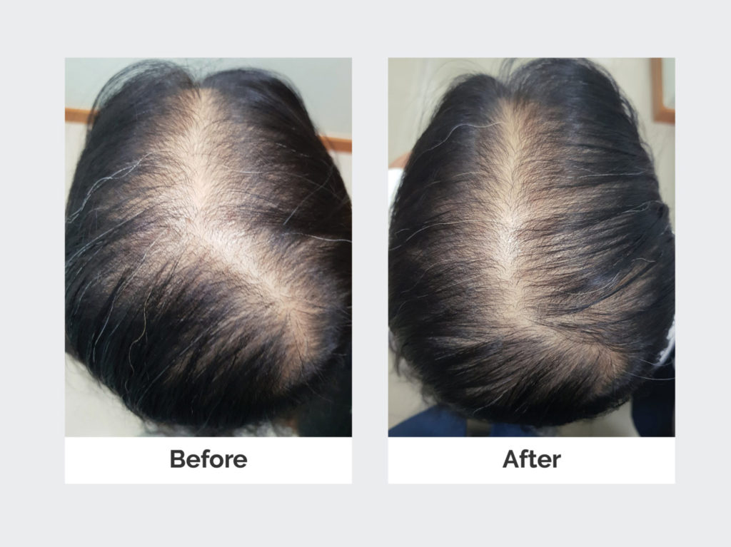 results of successful treatment for thinning hair