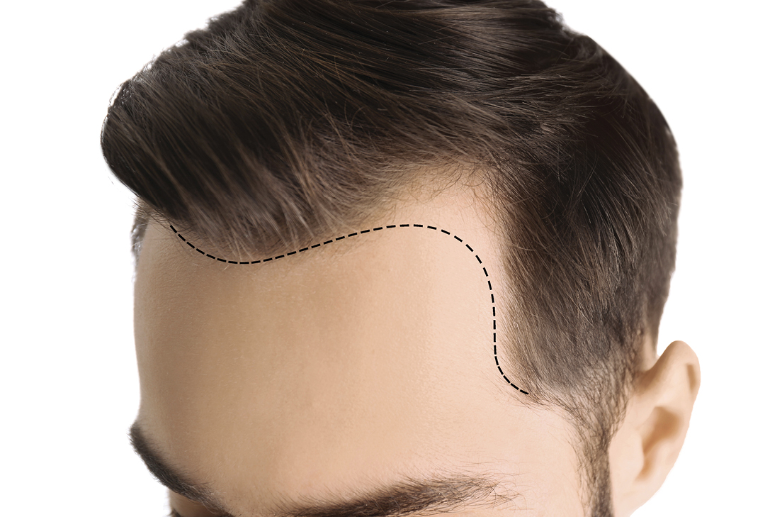 Man with an outline of his thin, receding hairline