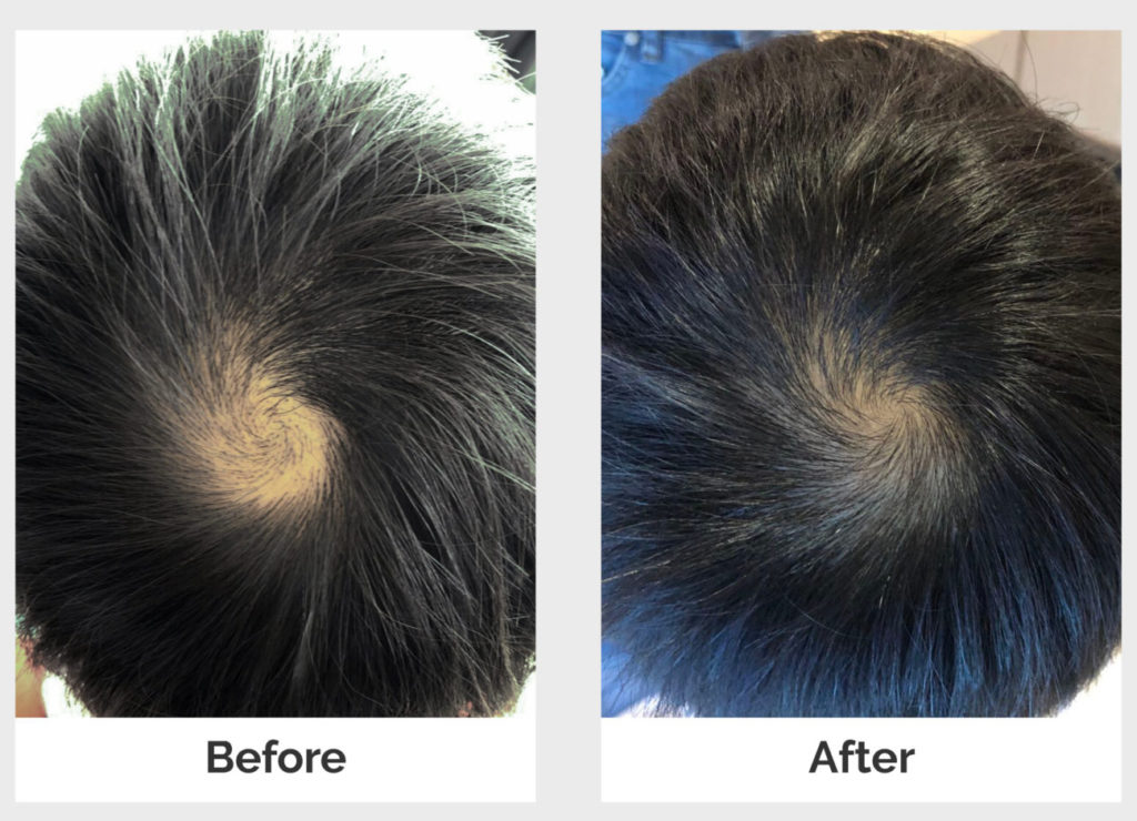 before and after alopecia treatments