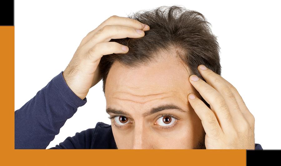 Man looks at his thinning hair