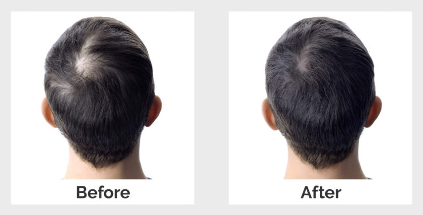the results of successful genetic hairloss treatment
