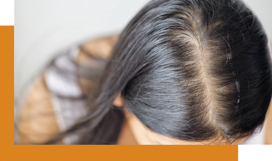 female hairloss after giving birth