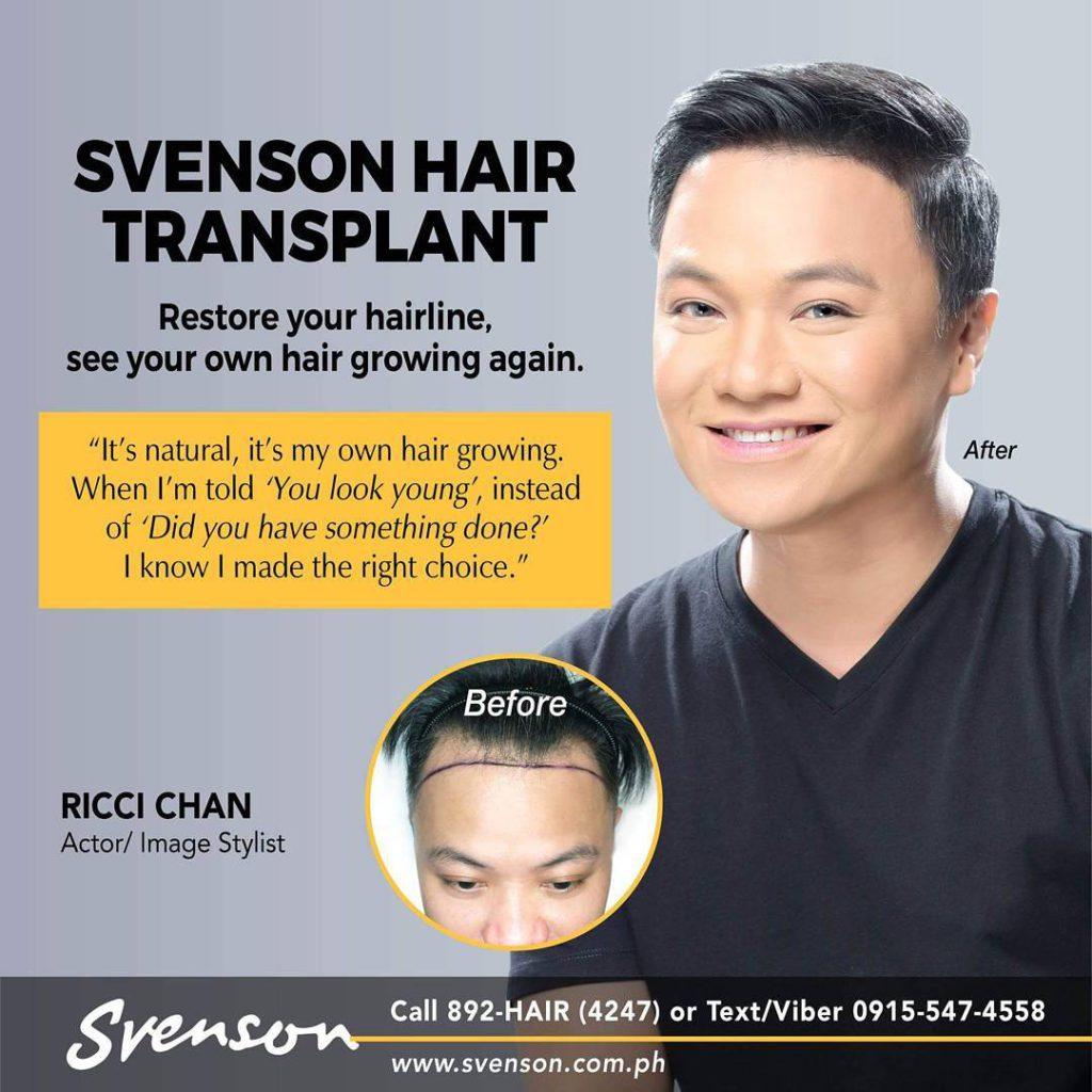 Svenson Hair Transplant ad with Ricci Chan