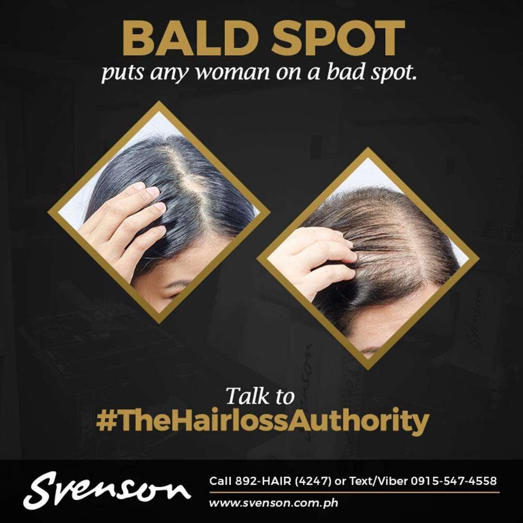 Svenson ad showing a woman with bald spots