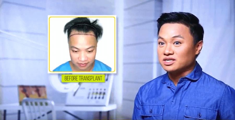 Ricci Chan before FUE hair transplant