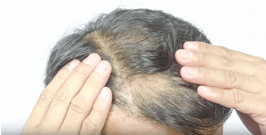 worried man with severe hairloss