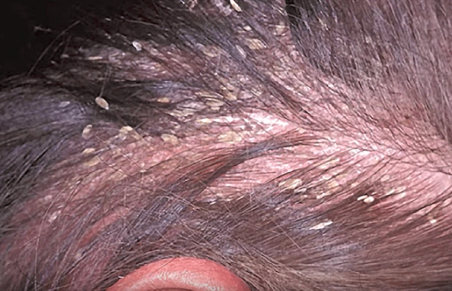 Man with a severe case of dandruff
