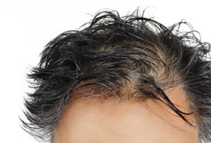 a man tries to cover his bald spots