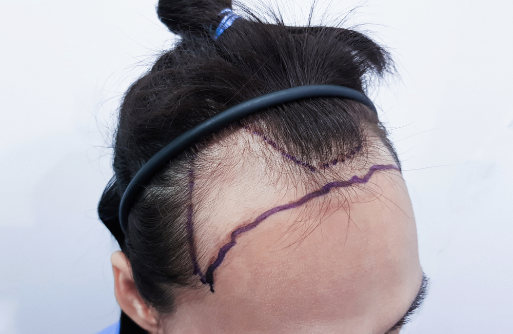 hair transplant patient getting ready for a procedure