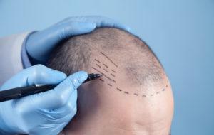 doctor preparing patient for hair transplant