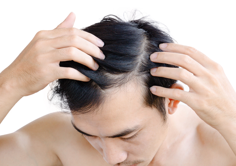 man with thinning hair on his crown
